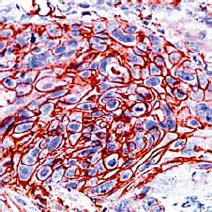 Immunohistochemistry (Formalin/PFA-fixed paraffin-embedded sections) - Glucose Transporter GLUT1 antibody (ab15309)