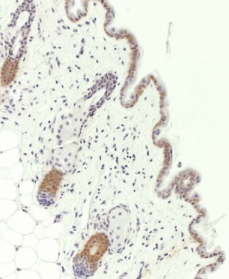 Immunohistochemistry (Formalin/PFA-fixed paraffin-embedded sections) - Cytokeratin 19 antibody (ab15463)