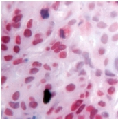 Immunohistochemistry (Formalin/PFA-fixed paraffin-embedded sections) - Retinoid X Receptor gamma antibody (ab15518)