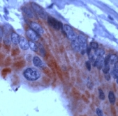 Immunohistochemistry (Formalin/PFA-fixed paraffin-embedded sections) - Anti-Thyroid Hormone Receptor beta antibody, prediluted (ab15546)