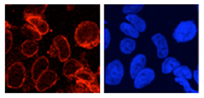 Immunocytochemistry/ Immunofluorescence - Anti-GP210 antibody (ab15600)