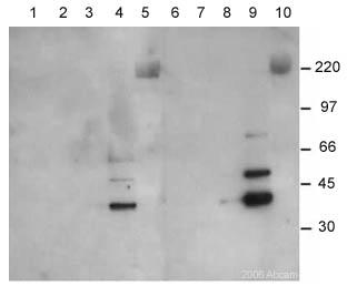 Western blot - EMAP II antibody [546-2] (ab15693)