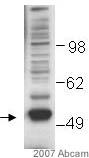Western blot - Coronin 3 antibody (ab15719)