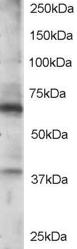 Western blot - RGS14 antibody (ab15720)
