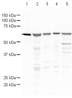 Western blot - Catalase antibody (ab15834)