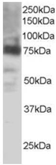 Western blot - COX2 / Cyclooxygenase 2 antibody (ab15839)