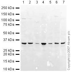 Western blot - VDAC1 / Porin antibody - Mitochondrial Loading Control (ab15895)