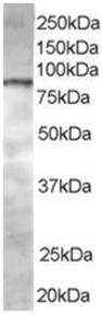 Western blot - CENTB1 antibody (ab15903)