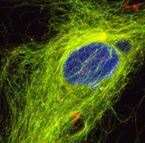 Immunocytochemistry/ Immunofluorescence - Parkin antibody (ab15954)