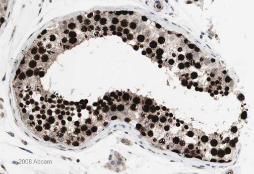 Immunohistochemistry (Formalin/PFA-fixed paraffin-embedded sections) - FOXP2 antibody (ab16046)
