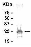 Western blot - Anti-CLIC3 antibody (ab16050)