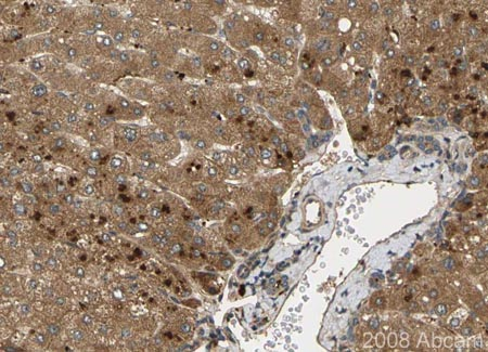 Immunohistochemistry (Formalin/PFA-fixed paraffin-embedded sections) - Noggin antibody (ab16054)