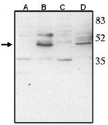 Western blot - CHX10 antibody - ChIP Grade (ab16141)