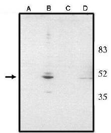 Western blot - CHX10 antibody - ChIP Grade (ab16142)