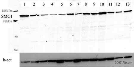 Western blot - SMC1 antibody [C2M] (ab16147)