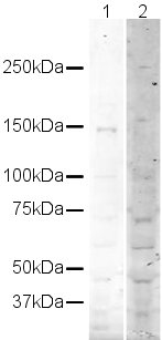 Western blot - Werner's syndrome helicase WRN antibody (ab16489)