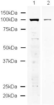 Western blot - SPHK1 antibody (ab16491)