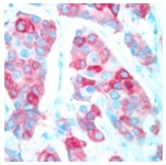 Immunohistochemistry (Formalin/PFA-fixed paraffin-embedded sections) - COX2 / Cyclooxygenase 2 antibody [SP21] (ab16701)