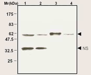 Western blot - Anti-Catalase antibody (ab16731)