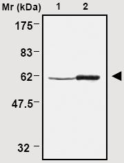 Western blot - TXNRD1 antibody [5A5] (ab16851)