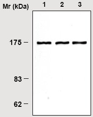 Western blot - Phospholipase C gamma antibody [2B1] (ab16955)