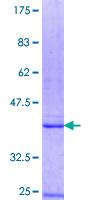 SDS-PAGE - B3GALT4 protein (ab160149)