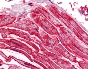 Immunohistochemistry (Formalin/PFA-fixed paraffin-embedded sections) - ALS2CR2 antibody (ab17205)