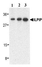 Western blot - ALS2CR2 antibody (ab17205)