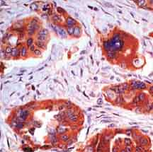 Immunohistochemistry (Formalin/PFA-fixed paraffin-embedded sections) - Anti-Von Hippel Lindau antibody [SPM324], prediluted (ab17768)