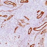 Immunohistochemistry (Formalin/PFA-fixed paraffin-embedded sections) - Anti-Laminin gamma 1 antibody [SPM277] (ab17792)