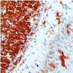 Immunohistochemistry (Formalin/PFA-fixed paraffin-embedded sections) - Anti-HLA DR antibody [SPM289] (ab17844)