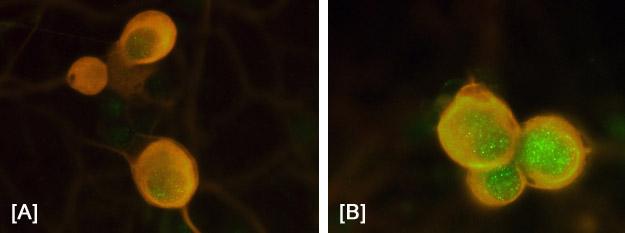 Immunocytochemistry - c-Fos (phospho T232) antibody (ab17933)