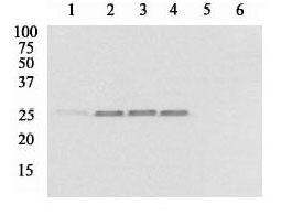 Western blot - Hsp25 (phospho S86) antibody (ab17938)