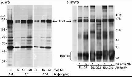 Western blot - BRD8 antibody (ab17968)
