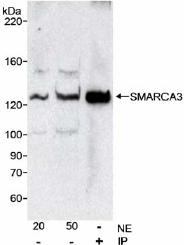 Western blot - SMARCA3 antibody - ChIP Grade (ab17984)
