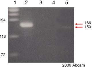 ChIP - SMARCA3 antibody - ChIP Grade (ab17984)