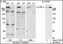 Western blot - Anti-ATM antibody (ab17995)