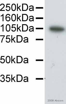 Western blot - alpha Actinin antibody [0.T.02] (ab18061)
