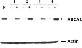 Western blot - Anti-ABCA1 antibody [AB.H10] (ab18180)