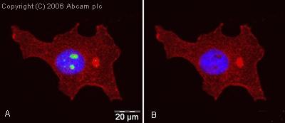 Immunocytochemistry/ Immunofluorescence - hnRNP K antibody (ab18195)