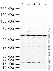 Western blot - hnRNP K antibody (ab18195)