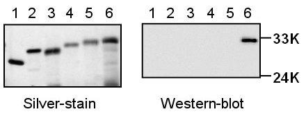 Western blot - Histone H1.5 antibody (ab18208)
