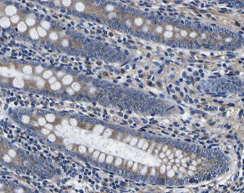 Immunohistochemistry (Formalin/PFA-fixed paraffin-embedded sections) - alpha Tubulin antibody (ab18251)