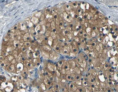 Immunohistochemistry (Formalin/PFA-fixed paraffin-embedded sections) - PARK7/DJ1 antibody (ab18257)