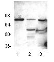 Western blot - HDAC10 antibody (ab18971)