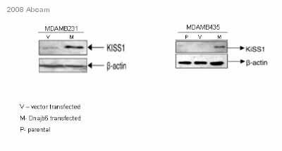 Western blot - Kisspeptin antibody (ab19028)