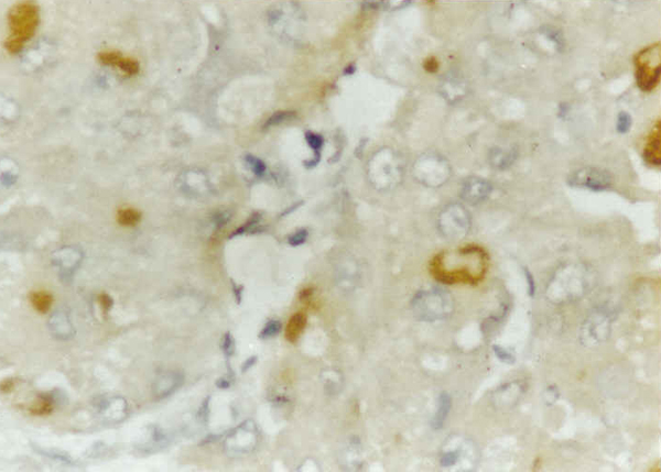 Immunohistochemistry (Formalin/PFA-fixed paraffin-embedded sections) - Anti-Hepatitis C Virus NS4 antibody [5D4/10E7] (ab19048)