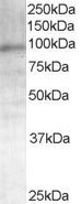 Western blot - Anti-Androgen Receptor antibody (ab19066)