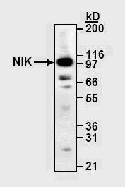 Western blot - NFkB Inducing Kinase NIK antibody (ab19144)
