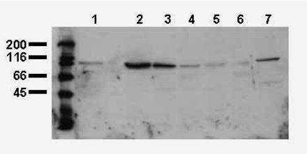 Western blot - beta Catenin antibody [BDI770] (ab19452)